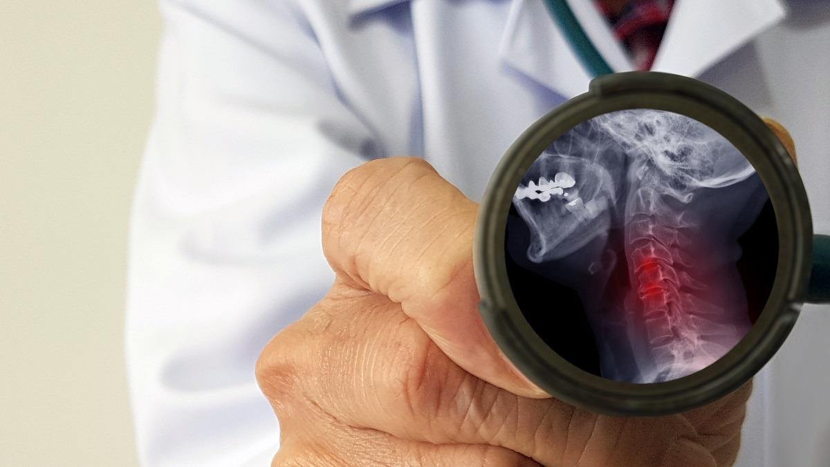 Mielopatia cervicale