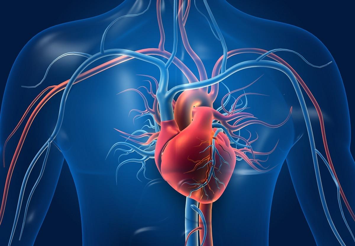 Arteriopatia