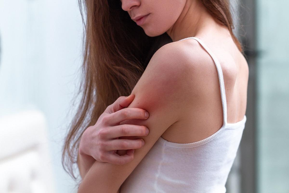Dermatite allergica