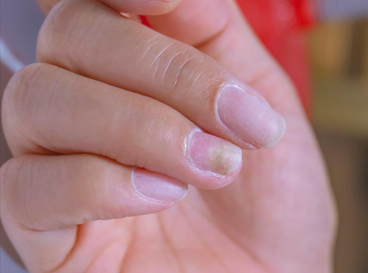 Funghi alle unghie