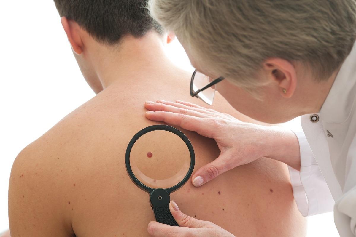 Tumore della pelle