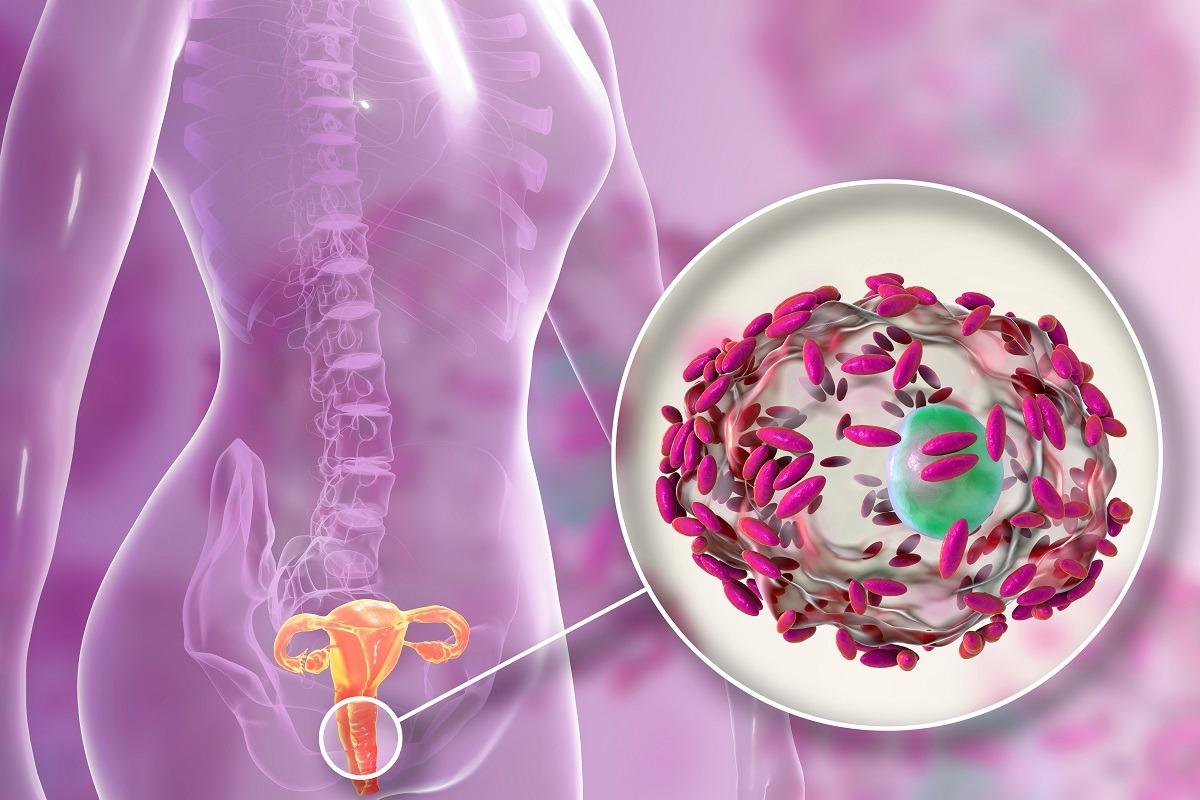 Vaginosi batterica