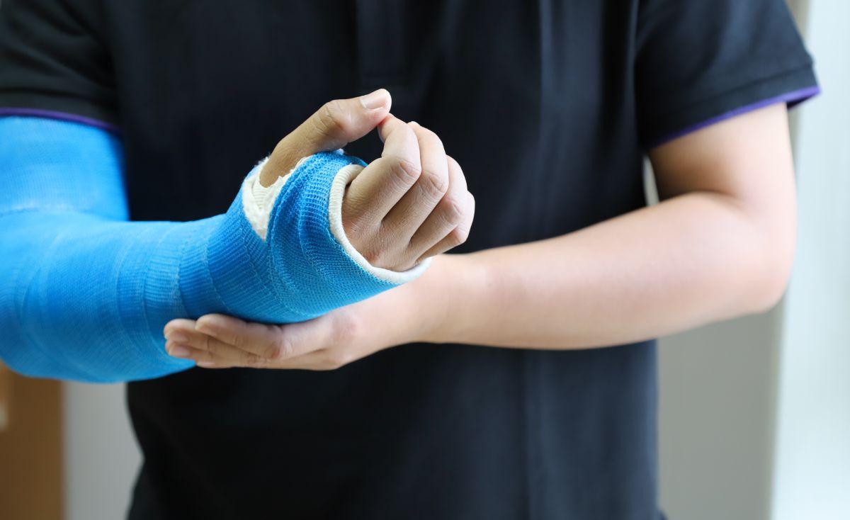 Frattura composta braccio